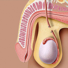 Cirurgia de vasectomia em Recife